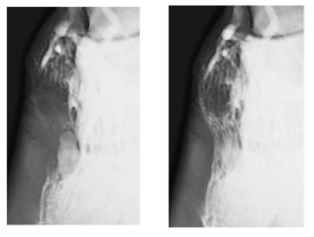 Osso navicolare cavallo: Lorenzo d'Arpe Medico Veterinario è esperto di laminite nel cavallo, navicolite e in tutte le patologie del piede del cavallo. Come evitare un cavallo zoppo